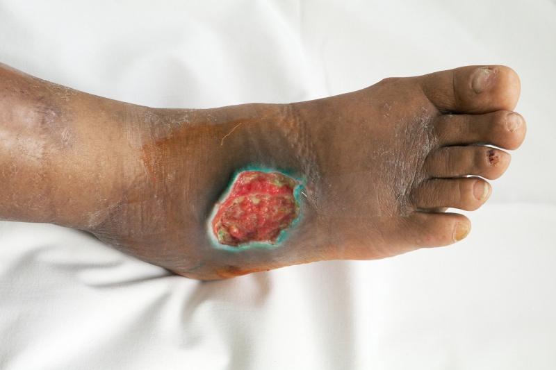 Citaten Ziekte Ziekten : Ziekte van wegener infobron