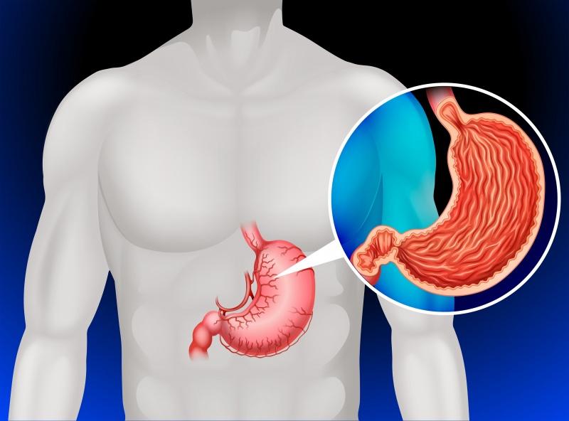 symptomen maagtumor