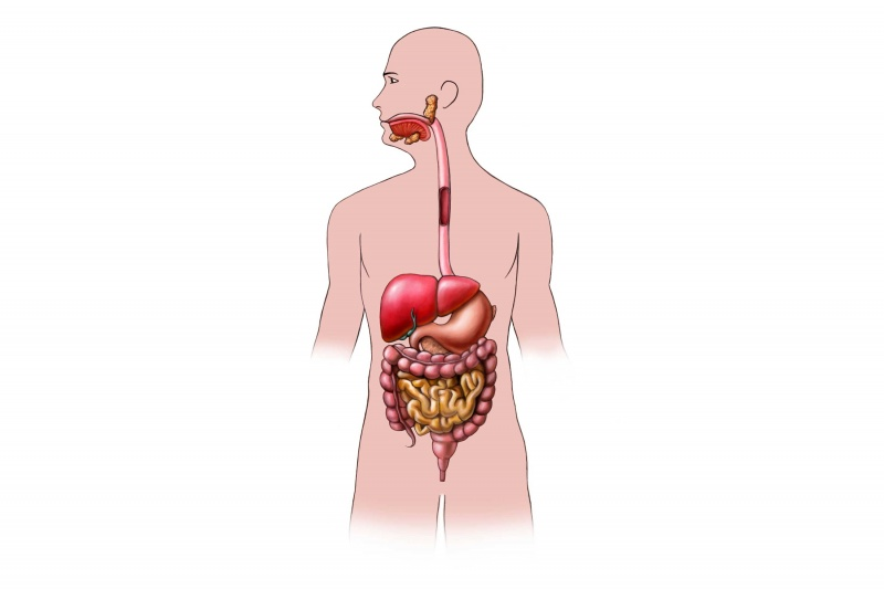 Oorzaken En Symptomen Slokdarmkanker Infobronnl