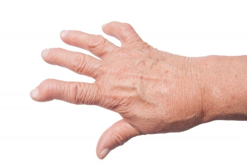 ontstaan artrose