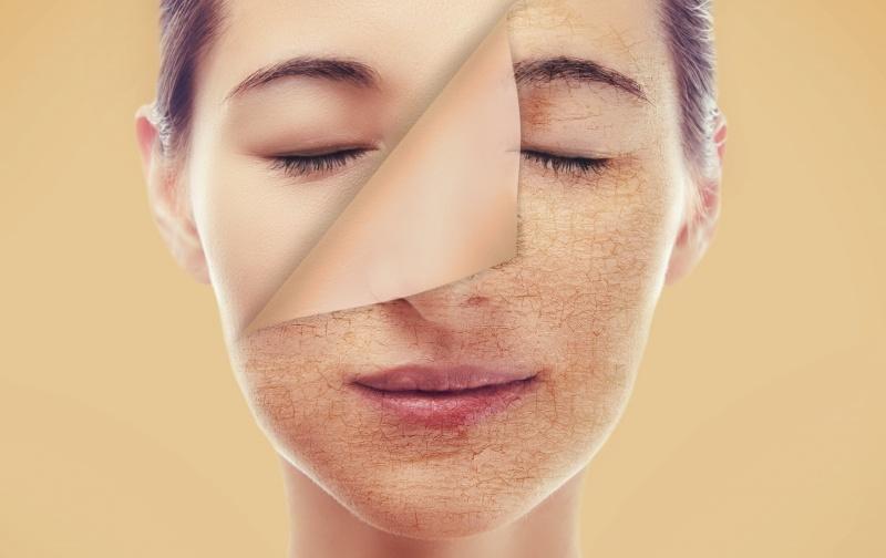 wat helpt tegen een vette huid
