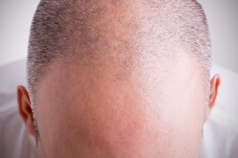 oorzaken kaalheid